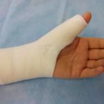 Пластиковый (полимерный) гипс при переломах, вывихах и других травмах