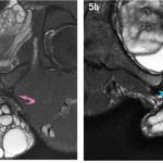 МРТ травмы мышц паховой области бедра